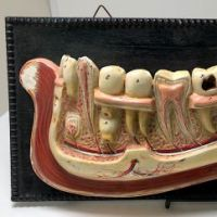 German Dental Display of Jaw Bone and Teeth Plaster New York Biologiocal Supply 1.jpg